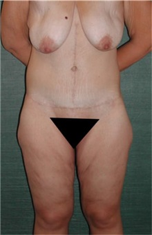 Body Lift After Photo by Steven Wallach, MD; New York, NY - Case 33644