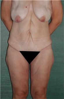 Body Lift Before Photo by Steven Wallach, MD; New York, NY - Case 33644