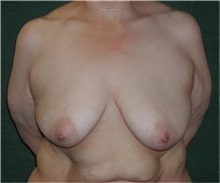 Breast Augmentation Before Photo by Steven Wallach, MD; New York, NY - Case 33645
