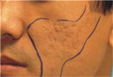 Skin rejuvenation and resurfacing Before Photo by Steven Wallach, MD; New York, NY - Case 33646