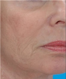 Skin rejuvenation and resurfacing After Photo by Steven Wallach, MD; New York, NY - Case 33655