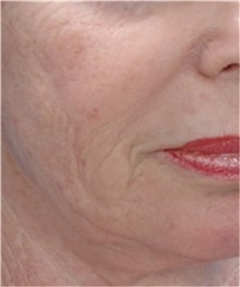 Skin rejuvenation and resurfacing Before Photo by Steven Wallach, MD; New York, NY - Case 33655