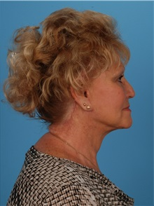 Facelift After Photo by Robert Carpenter, MD; Cumberland, MD - Case 32158