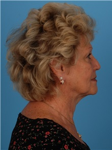 Facelift Before Photo by Robert Carpenter, MD; Cumberland, MD - Case 32158