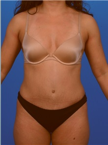 Tummy Tuck After Photo by Robert Carpenter, MD; Cumberland, MD - Case 32160