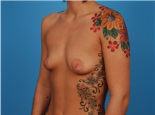 Breast Augmentation Before Photo by Robert Carpenter, MD; Cumberland, MD - Case 32167