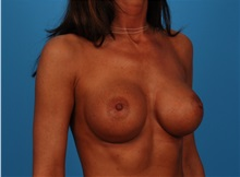 Breast Augmentation After Photo by Robert Carpenter, MD; Cumberland, MD - Case 32168