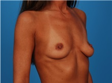 Breast Augmentation Before Photo by Robert Carpenter, MD; Cumberland, MD - Case 32168