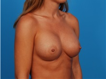 Breast Augmentation After Photo by Robert Carpenter, MD; Cumberland, MD - Case 32171