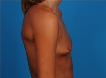 Breast Augmentation Before Photo by Robert Carpenter, MD; Cumberland, MD - Case 32171