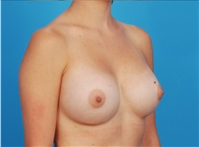 Breast Augmentation After Photo by Robert Carpenter, MD; Cumberland, MD - Case 32173
