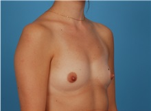 Breast Augmentation Before Photo by Robert Carpenter, MD; Cumberland, MD - Case 32173