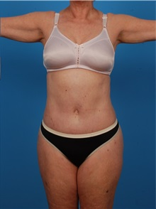 Liposuction After Photo by Robert Carpenter, MD; Cumberland, MD - Case 32174