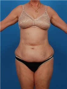 Liposuction Before Photo by Robert Carpenter, MD; Cumberland, MD - Case 32174