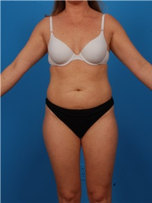 Liposuction Before Photo by Robert Carpenter, MD; Cumberland, MD - Case 32177
