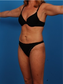 Liposuction After Photo by Robert Carpenter, MD; Cumberland, MD - Case 32177