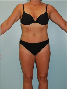 Liposuction After Photo by Robert Carpenter, MD; Cumberland, MD - Case 32178