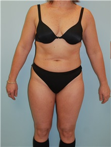 Liposuction Before Photo by Robert Carpenter, MD; Cumberland, MD - Case 32178