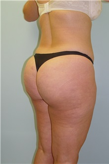 Liposuction Before Photo by Robert Carpenter, MD; Cumberland, MD - Case 32180