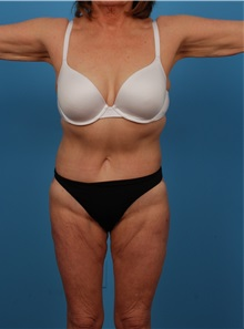 Liposuction After Photo by Robert Carpenter, MD; Cumberland, MD - Case 32183