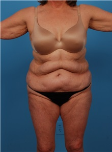 Liposuction Before Photo by Robert Carpenter, MD; Cumberland, MD - Case 32183