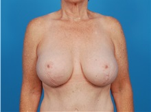 Breast Lift After Photo by Robert Carpenter, MD; Cumberland, MD - Case 32193