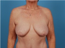 Breast Lift Before Photo by Robert Carpenter, MD; Cumberland, MD - Case 32193