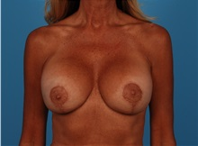 Breast Lift After Photo by Robert Carpenter, MD; Cumberland, MD - Case 32197