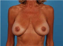 Breast Lift Before Photo by Robert Carpenter, MD; Cumberland, MD - Case 32197