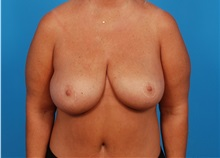 Breast Lift After Photo by Robert Carpenter, MD; Cumberland, MD - Case 32198