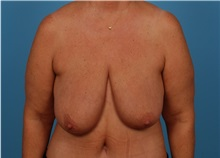 Breast Lift Before Photo by Robert Carpenter, MD; Cumberland, MD - Case 32198
