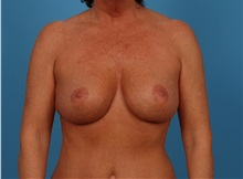 Breast Lift After Photo by Robert Carpenter, MD; Cumberland, MD - Case 32199
