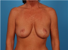 Breast Lift Before Photo by Robert Carpenter, MD; Cumberland, MD - Case 32199