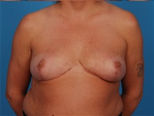 Breast Reduction After Photo by Robert Carpenter, MD; Cumberland, MD - Case 32210