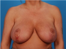 Breast Reduction Before Photo by Robert Carpenter, MD; Cumberland, MD - Case 32210