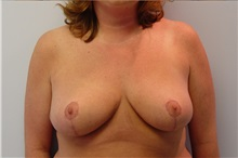 Breast Reduction After Photo by Robert Carpenter, MD; Cumberland, MD - Case 32211