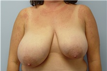 Breast Reduction Before Photo by Robert Carpenter, MD; Cumberland, MD - Case 32211