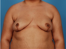 Breast Reconstruction After Photo by Robert Carpenter, MD; Cumberland, MD - Case 32214