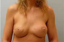 Breast Reconstruction After Photo by Robert Carpenter, MD; Cumberland, MD - Case 32215