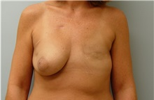 Breast Reconstruction Before Photo by Robert Carpenter, MD; Cumberland, MD - Case 32215