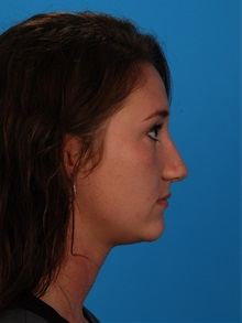 Rhinoplasty After Photo by Robert Carpenter, MD; Cumberland, MD - Case 32217