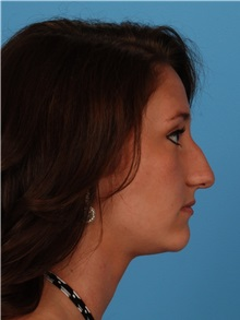 Rhinoplasty Before Photo by Robert Carpenter, MD; Cumberland, MD - Case 32217
