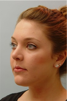 Rhinoplasty After Photo by Robert Carpenter, MD; Cumberland, MD - Case 32218