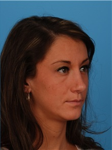 Rhinoplasty After Photo by Robert Carpenter, MD; Cumberland, MD - Case 32220