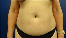 Tummy Tuck Before Photo by Anne Taylor, MD, MPH; Worthington, OH - Case 33303