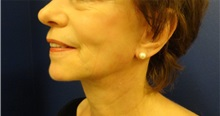 Facelift After Photo by Anne Taylor, MD; Worthington, OH - Case 33305