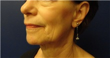 Facelift Before Photo by Anne Taylor, MD; Worthington, OH - Case 33305