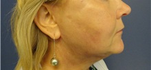 Facelift After Photo by Anne Taylor, MD; Worthington, OH - Case 33307