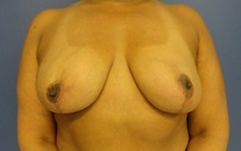Breast Reduction After Photo by Anne Taylor, MD; Worthington, OH - Case 33421