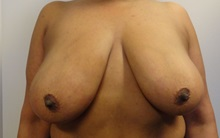 Breast Reduction Before Photo by Anne Taylor, MD, MPH; Worthington, OH - Case 33421